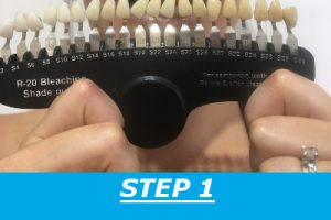 teeth-whitening-step-1-2