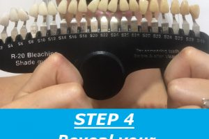 teeth-whitening-step-4-2