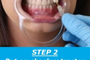 teethwhiteningstep2applygel